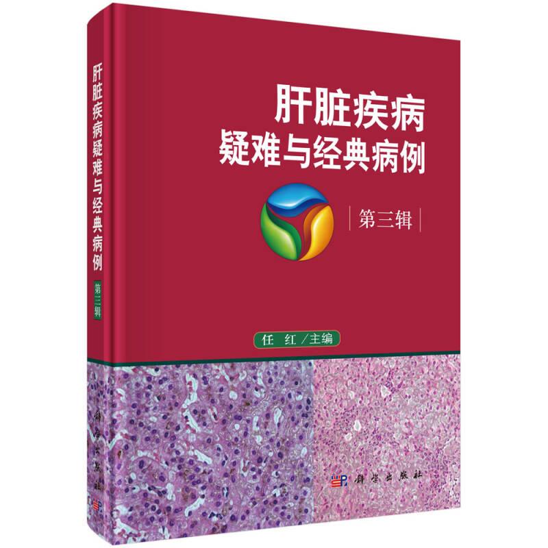 肝脏疾病疑难与经典病例  第三辑