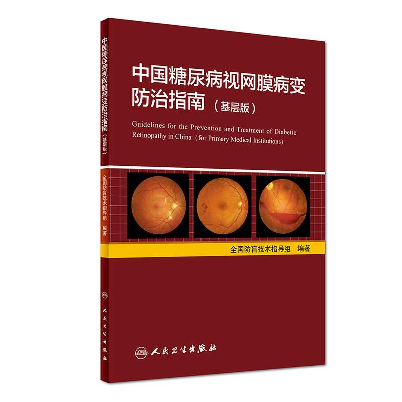 中国糖尿病视网膜病变防治指南(基层版)