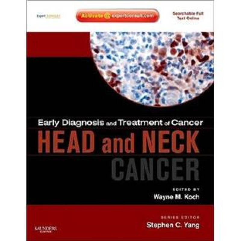 cancer diagnosis Read about common cancer symptoms and signs, which include lumps, blood in stool or urine, nonhealing sores, unexplained weight loss, fever, swollen glands, coughing up blood, and night sweats.