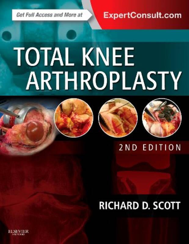 Total Knee Arthroplasty全膝关节成形术,第2版