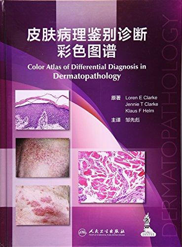 皮肤病理鉴别诊断彩色图谱(翻译版)