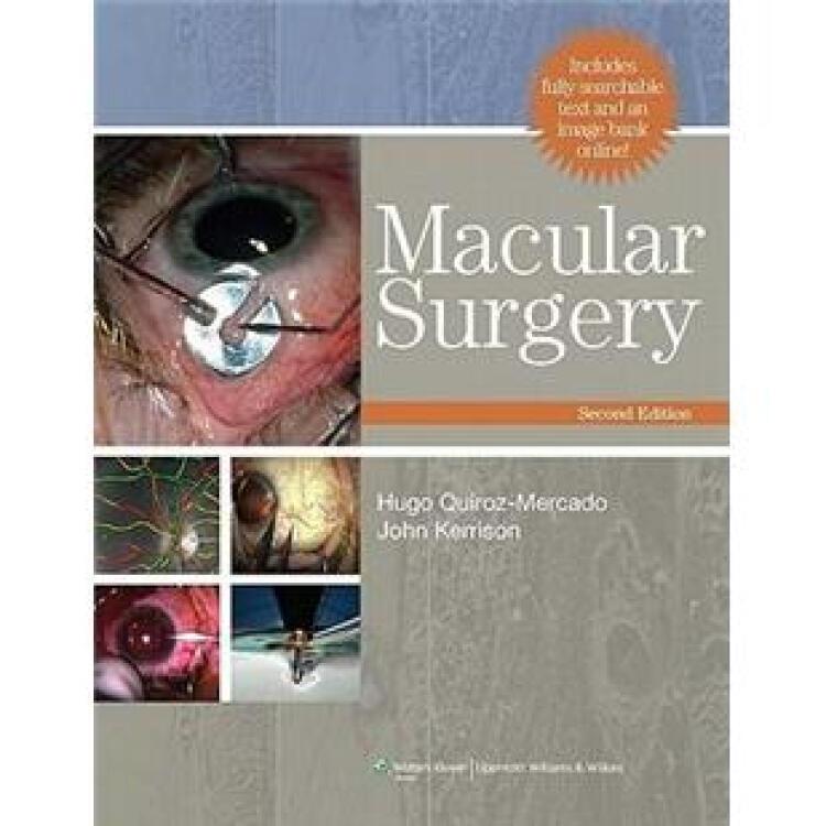 MacularSurgery[黄斑手术]