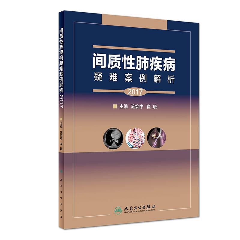 间质性肺疾病疑难案例解析(2017)