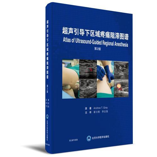 超声引导下区域疼痛阻滞图谱(第2版)