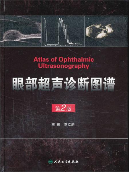 眼部超声诊断图谱(第2版)