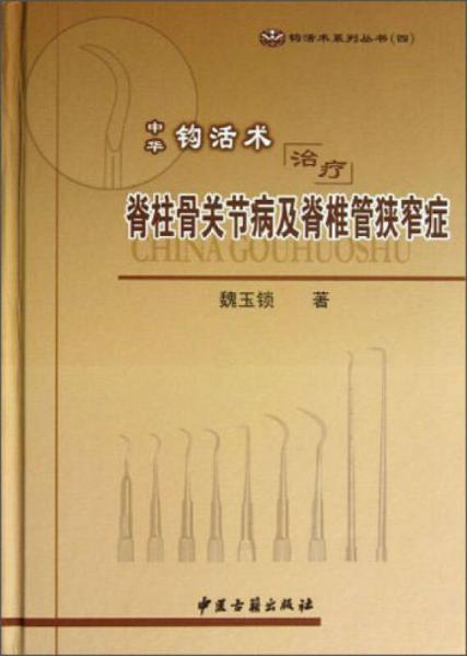 钩活术系列丛书(4):中华钩活术治疗脊柱骨关节病及脊椎管狭窄症