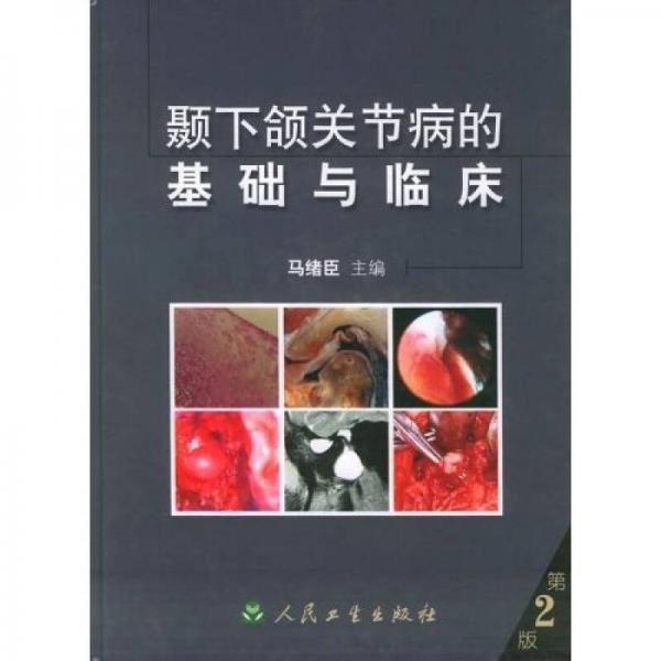 颞下颌关节病的基础与临床