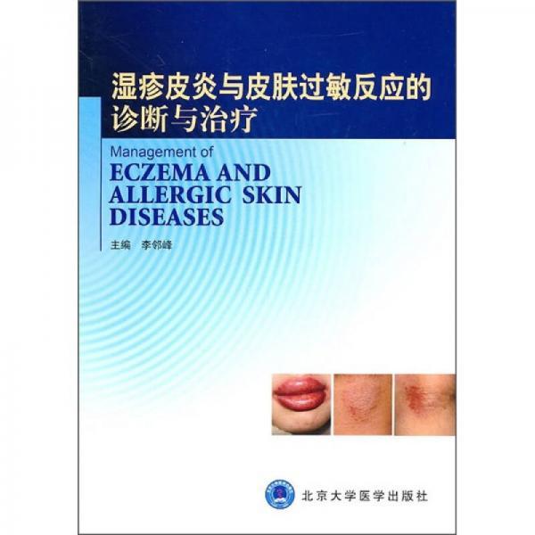 湿疹皮炎与皮肤过敏反应的诊断与治疗