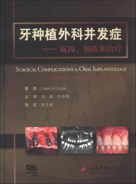 牙种植外科并发症:病因、预防和治疗