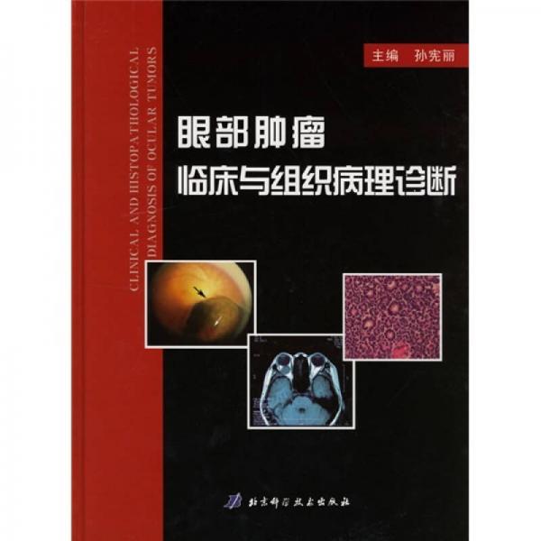 眼部肿瘤临床与组织病理诊断