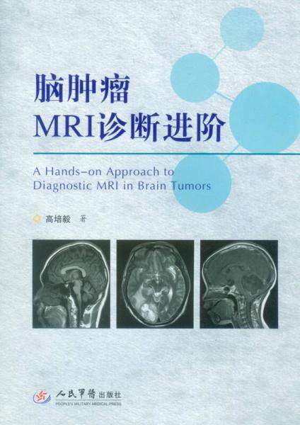 脑肿瘤MRI诊断进阶