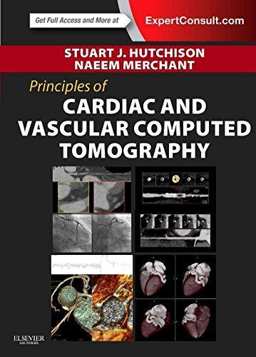 PrinciplesofCardiacandVascularComputedTomography,1e(PrinciplesofCardiovascularImaging)