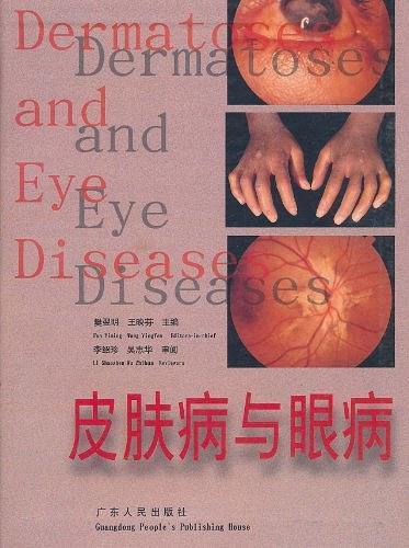 皮肤病与眼病