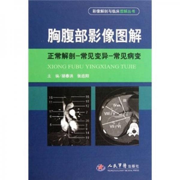 胸腹部影像图解:正常解剖-常见变异-常见病变