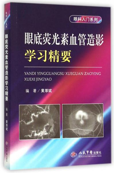 眼底荧光素血管造影学习精要/眼科入门系列
