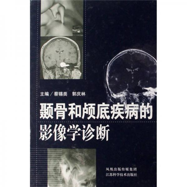 颞骨和颅底疾病的影像学诊断