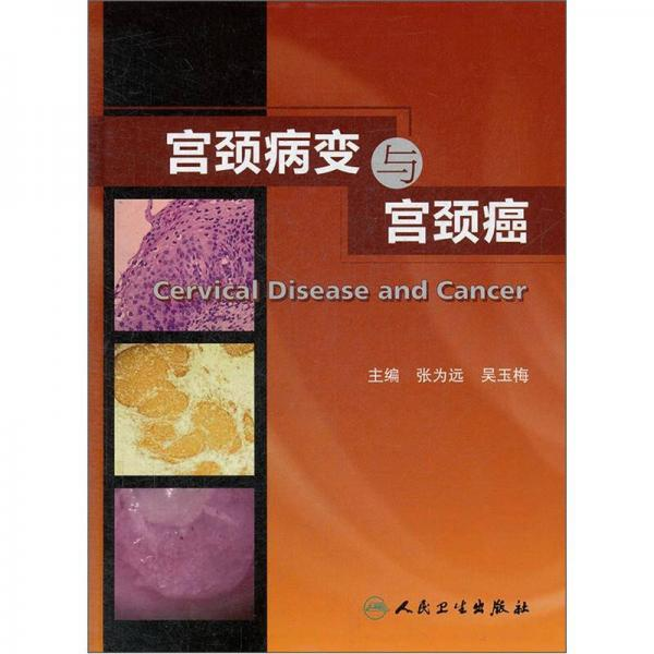 宫颈病变与宫颈癌
