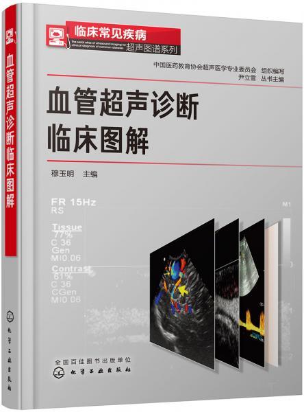 临床常见疾病超声图谱系列--血管超声诊断临床图解
