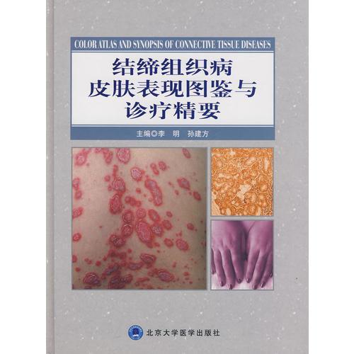 结缔组织病皮肤表现图鉴与诊疗精要