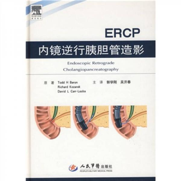 内镜逆行胰胆管造影(ERCP)