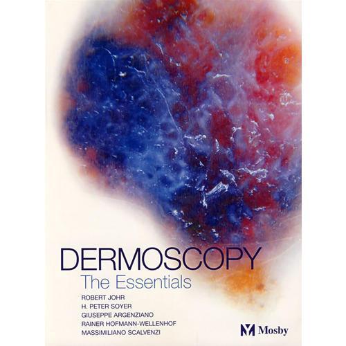 皮肤镜学Dermoscopy