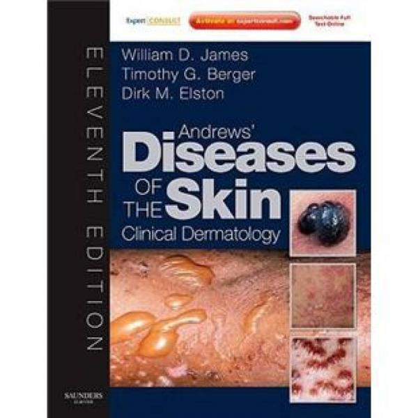 Andrews Diseases of the Skin安德鲁斯皮肤病学(第11版)