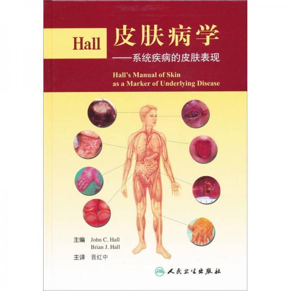 Hall皮肤病学:系统疾病的皮肤表现