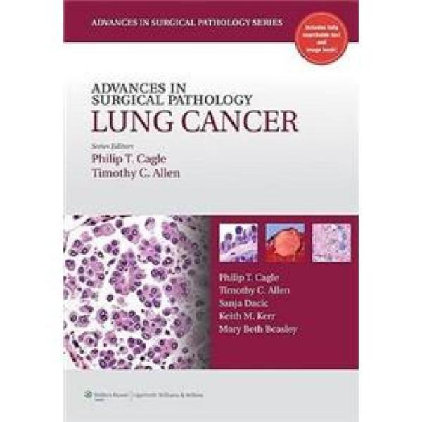 AdvancesinSurgicalPathology:LungCancer[外科病理学进展:肺癌]