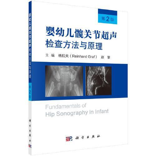 婴幼儿髋关节超声检查方法与原理(第2版)