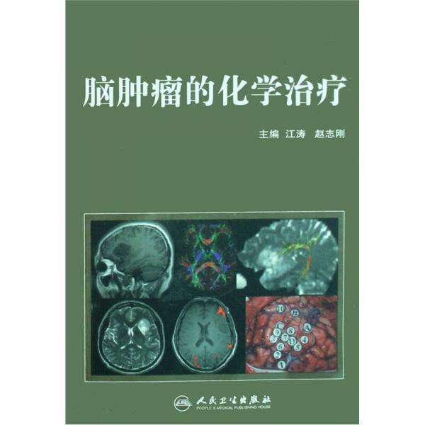 脑肿瘤的化学治疗