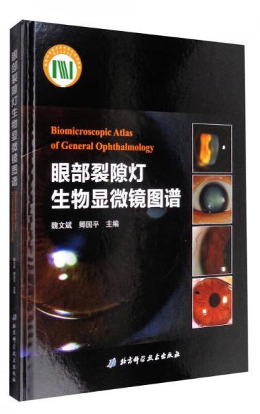眼部裂隙灯生物显微镜图谱