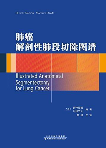肺癌解剖性肺段切除图谱