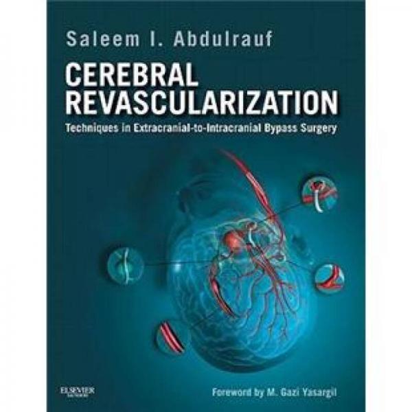 Cerebral Revascularization脑血管重建术