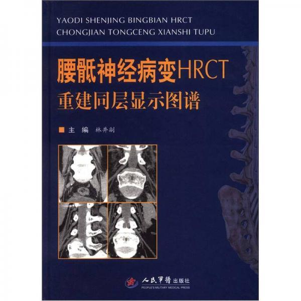 腰骶神经病变HRCT重建同层显示图谱