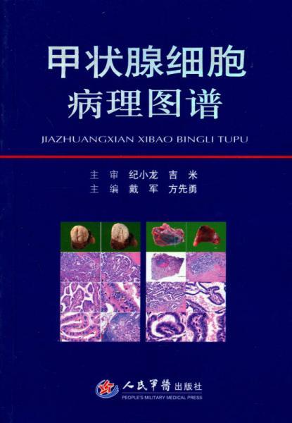 甲状腺细胞病理图谱