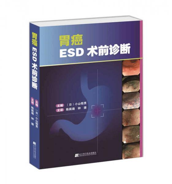 胃癌ESD术前诊断