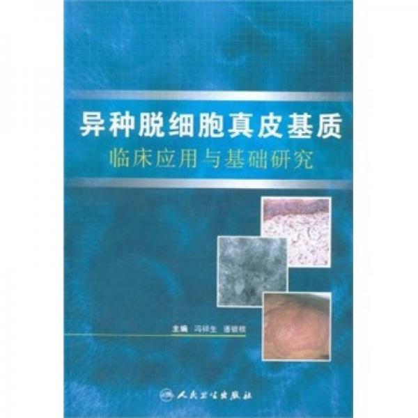 异种脱细胞真皮基质临床应用与基础研究