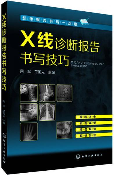 影像报告书写一点通--X线诊断报告书写技巧