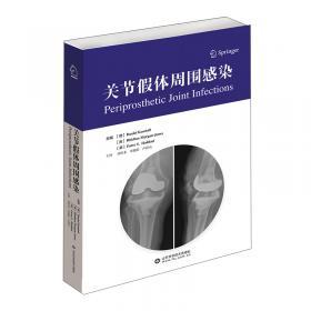 关节炎的诊治与康复
